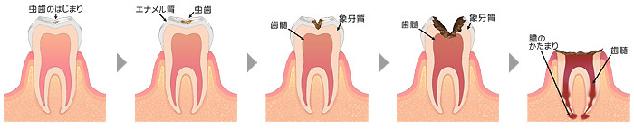 むし歯(う蝕・カリエス)治療